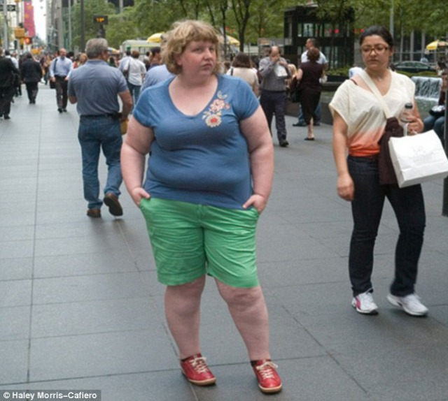 Obesidad Vigilada