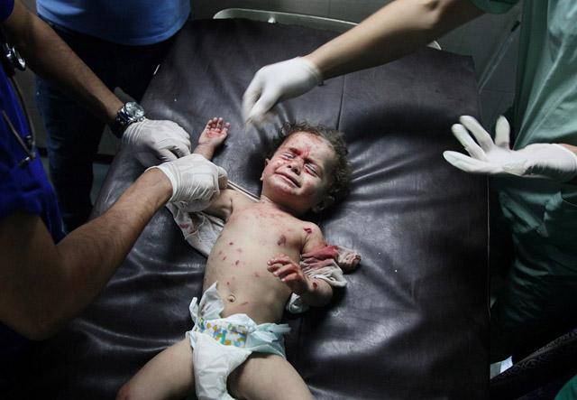 Injured Palestinians taken to hospital after Israeli airstrikes