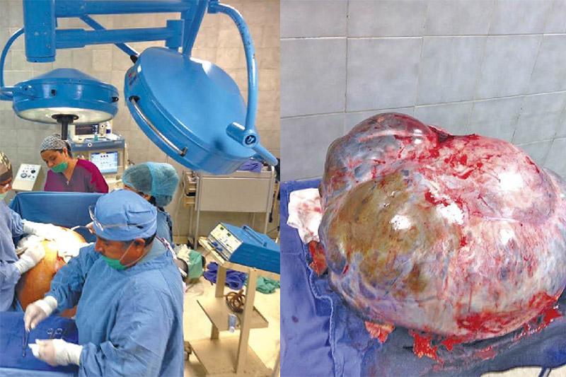 tumor-60-kilos-mujer-los-cabos