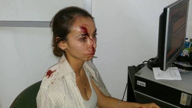 agresion periodista