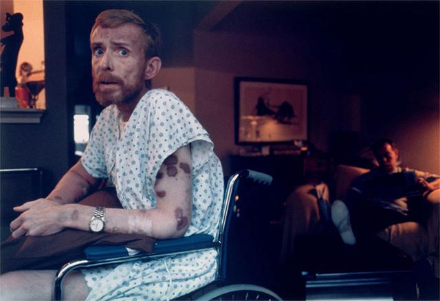 Ken Meeks y sus heridas en la piel, provocadas por el SIDA (1986)