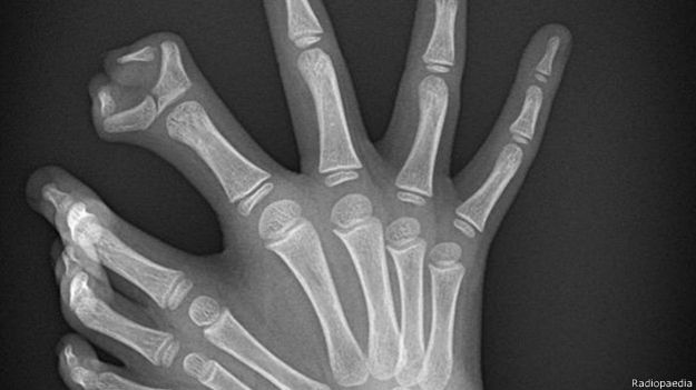 radiografia2