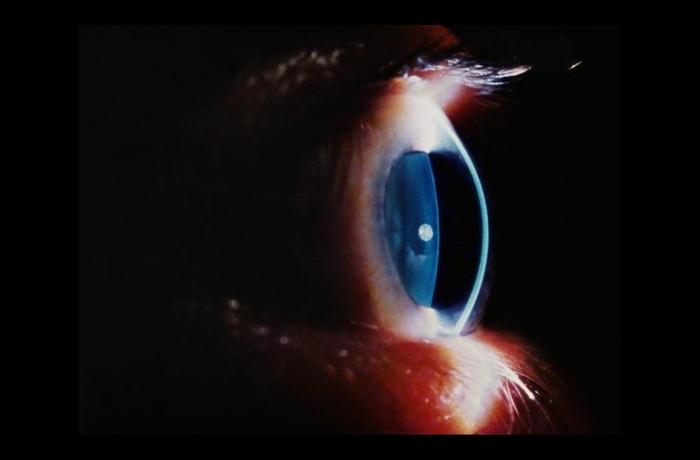 El_ojo