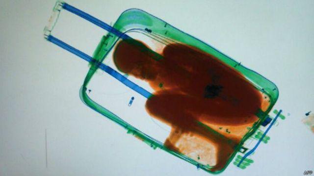 africa migración maleta rayos x