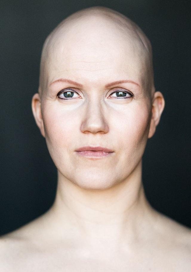 La alopecia a una alta testosterona
