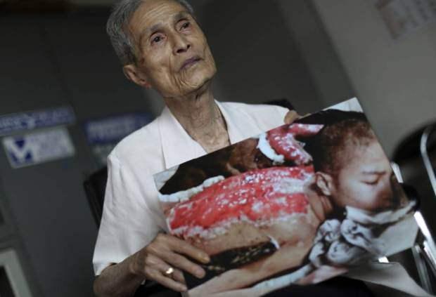 In this June 30, 2015 photo, Sumiteru Taniguchi, 86, a survivor of the 1945 atomic bombing of Nagasaki, shows a photo of himself taken in 1945, during an interview at his office in Nagasaki, southern Japan. For 70 years, Taniguchi, chairman of the Nagasaki Atomic Bomb Survivors Council, has lived a web of wounds covering most of his back, and the remains of three ribs that half rotted away and permanently press against his lungs, making it hard to breathe. His wife still applies a moisturizing cream every morning to reduce the irritation from the scars. (AP Photo/Eugene Hoshiko)
