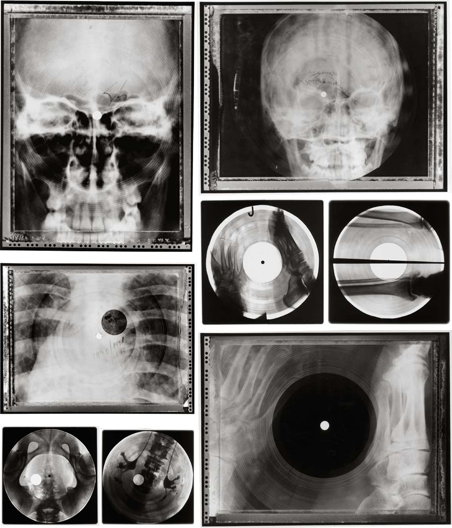 radiografias_vinilos_2