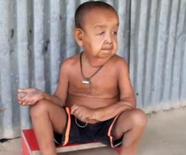 nino-enfermedad-anciano-progeria