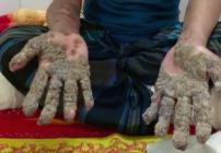 Hombre Árbol manos