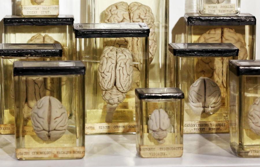 cerebro-estudio-cotnaminacion