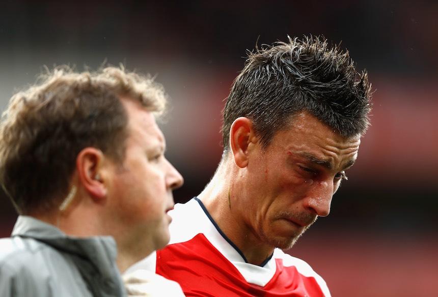 Laurent Koscielny salió con el ojo hinchado ante el Southampton.