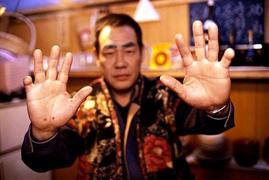 Yakuza sin dedos meñiques
