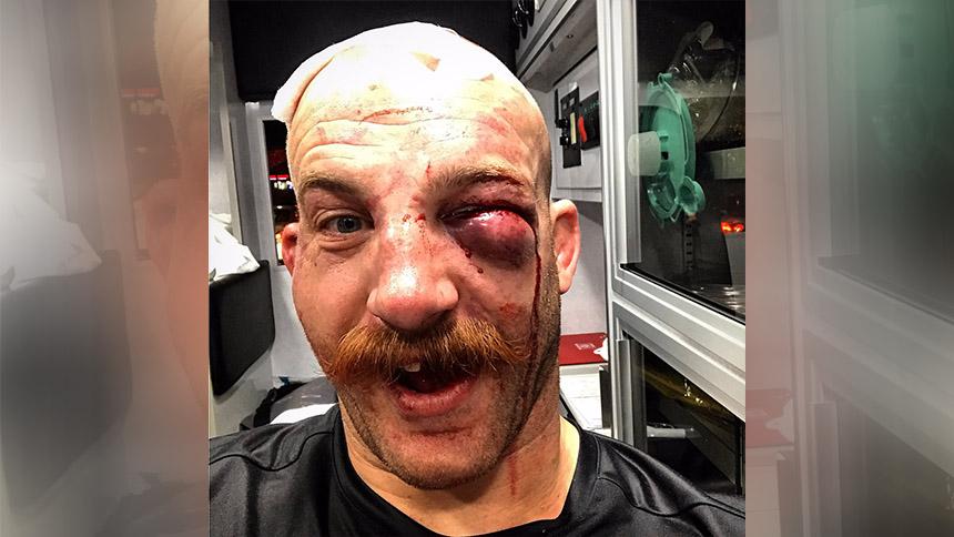 En la imagen del día: Así queda tu cara si te dan la Pelea de la Noche en la UFC