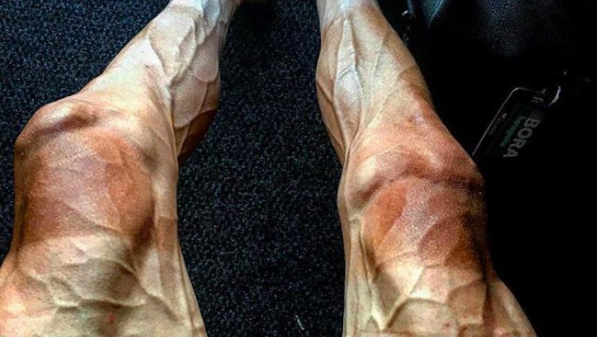 En la imagen del día: las piernas de un ciclista después de 16 etapas en el Tour de Francia