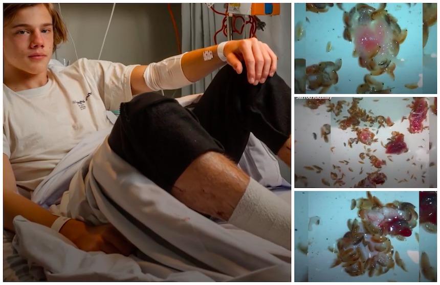 Adolescente es mordido por criaturitas marinas en una playa de Melbourne