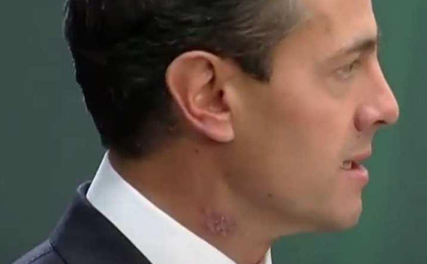 Enrique Peña Nieto y su mancha en el cuello