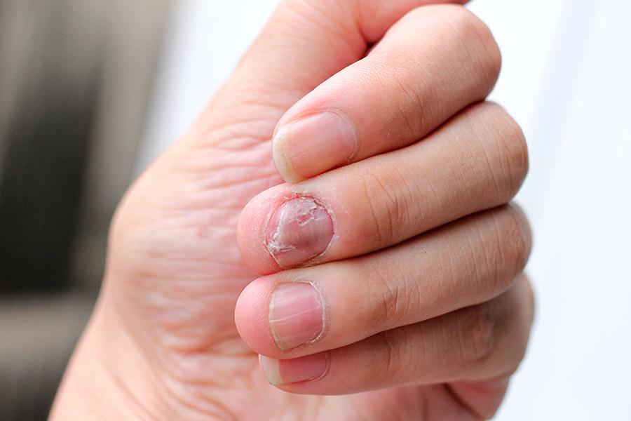 Un hombre casi muere por una infección que le provocó el morderse las uñas 🤢